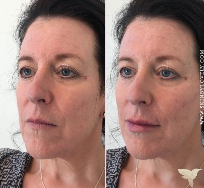 Revance RHA dermal fillres in lips, chin and cheeks in Lake Oswego