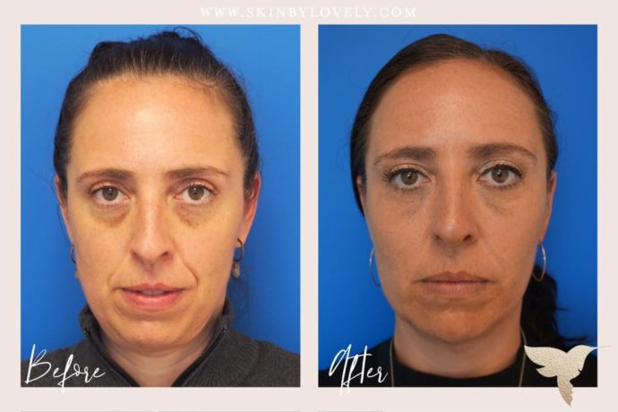 Restylane and Juvederm Ultra Plus for for nasolabial folds, marionette lines, lips and under eyes