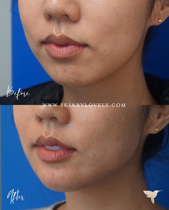 Restylane Lyft and Juvederm Voluma dermal filler for chin enhancement in Santa Monica and Portland