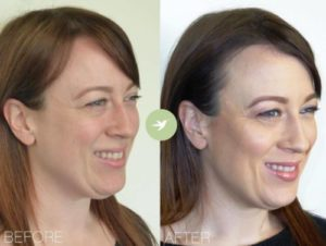 How Long Do Dermal Fillers Last? - Skin by Lovely