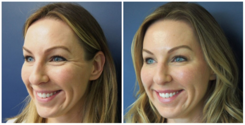 Before and After of Dysport for Crow's Feet at Skin by Lovely Santa Monica