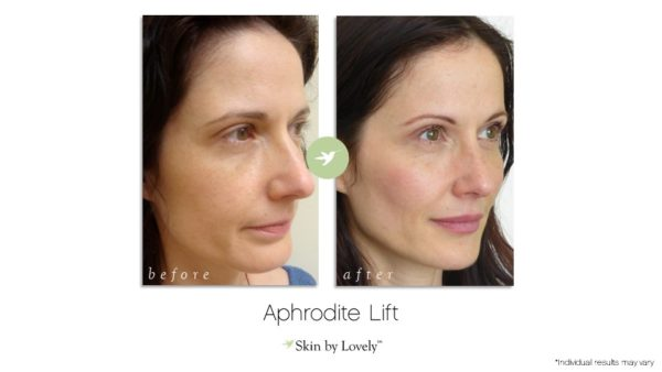 Aphrodite Lift before and after