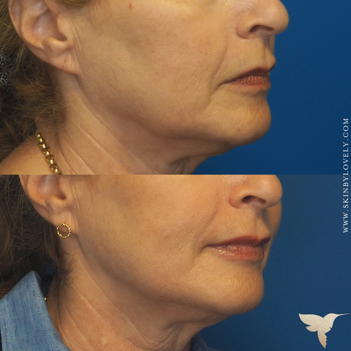 Skin by Lovely Before and After Vertical Lip Lines and Nasolabial Folds