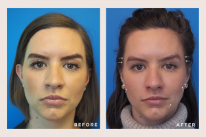 Contouring with Dermal Fillers, Before and Afters with Cheeks, Cheek Dermal Filler
