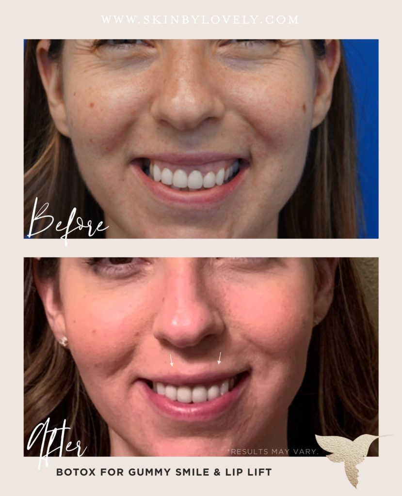 Lip flip before and after with Botox