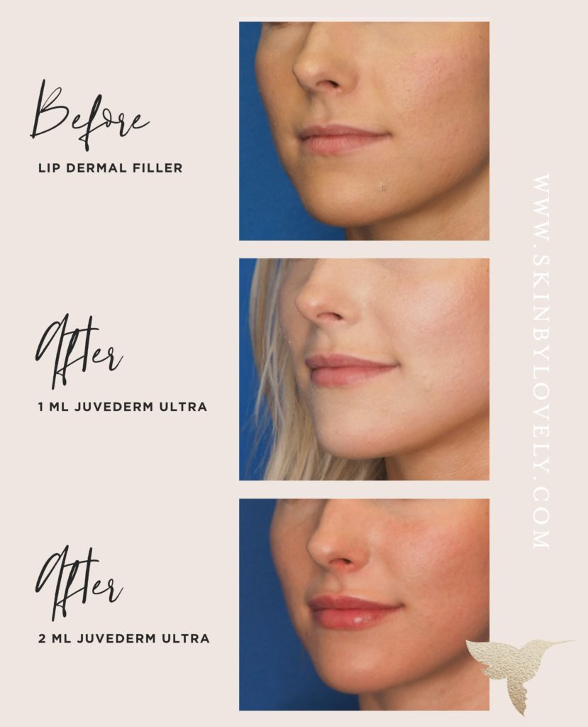 Lip filler before and after with Juvederm ultra