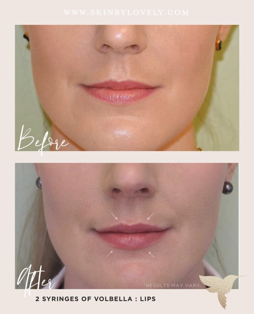 Lip filler before and after with Volbella
