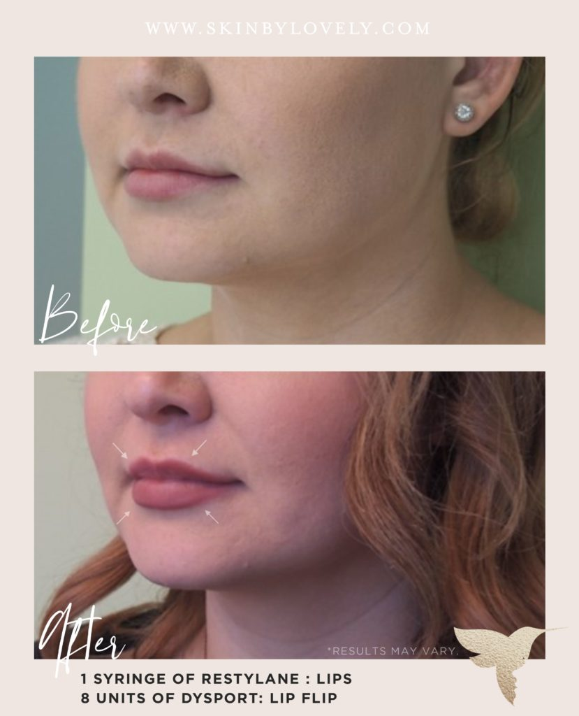 lip filler and lip flip before and after with Restylane