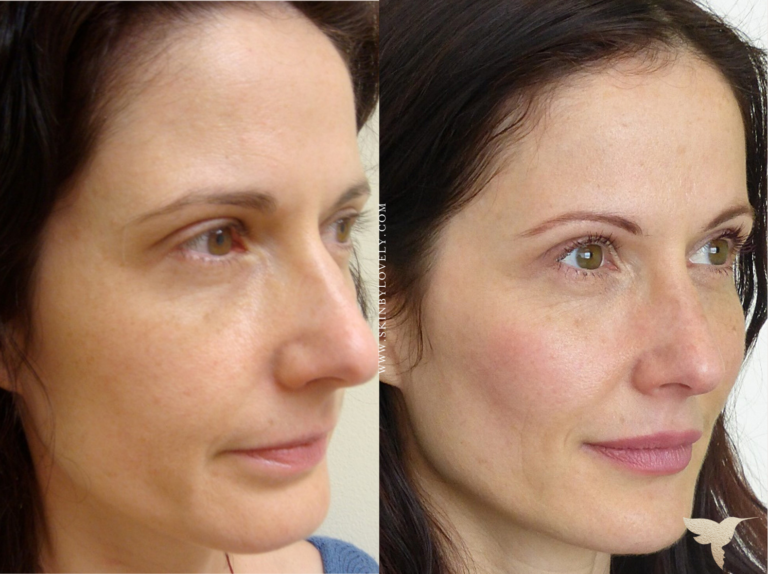 Lip and Voluma Cheek Filler Before and After from Santa Monica, California